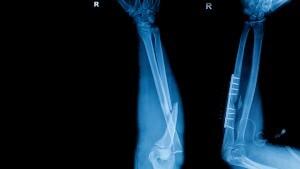 Von der QS werden Gussteile zum Röntgen an externe Dienstleister gegeben, um die Fehlerfreiheit gemäß Zeichnungsvorgaben zu überprüfen und nachzuweisen